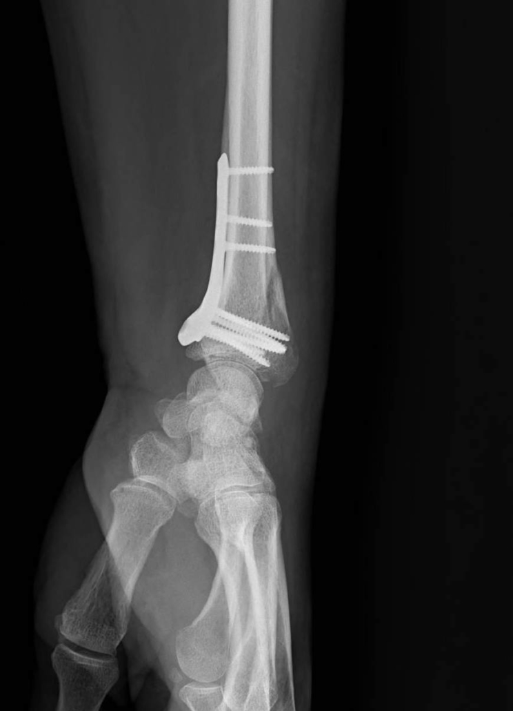 Fracture poignet osteosynthese
